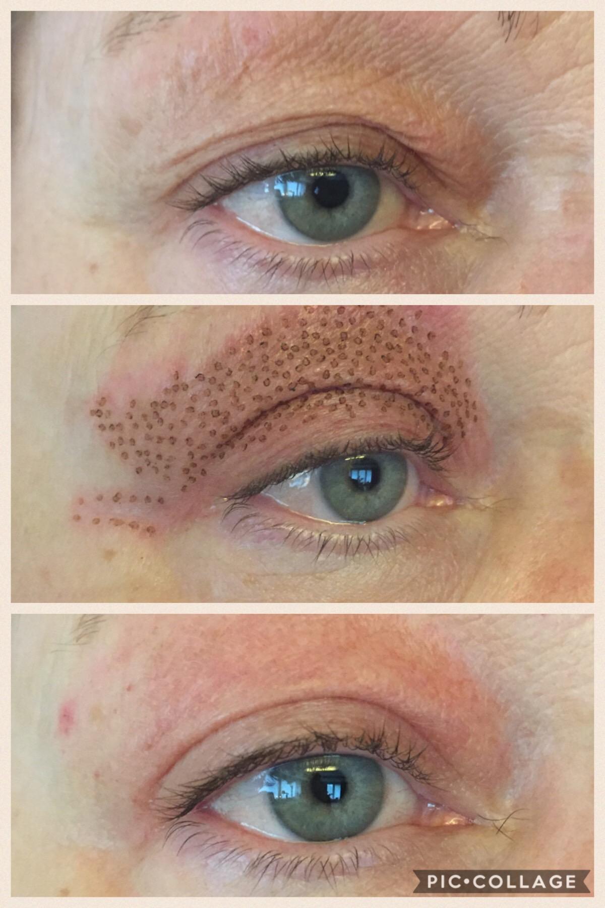 torr hud ögonlock